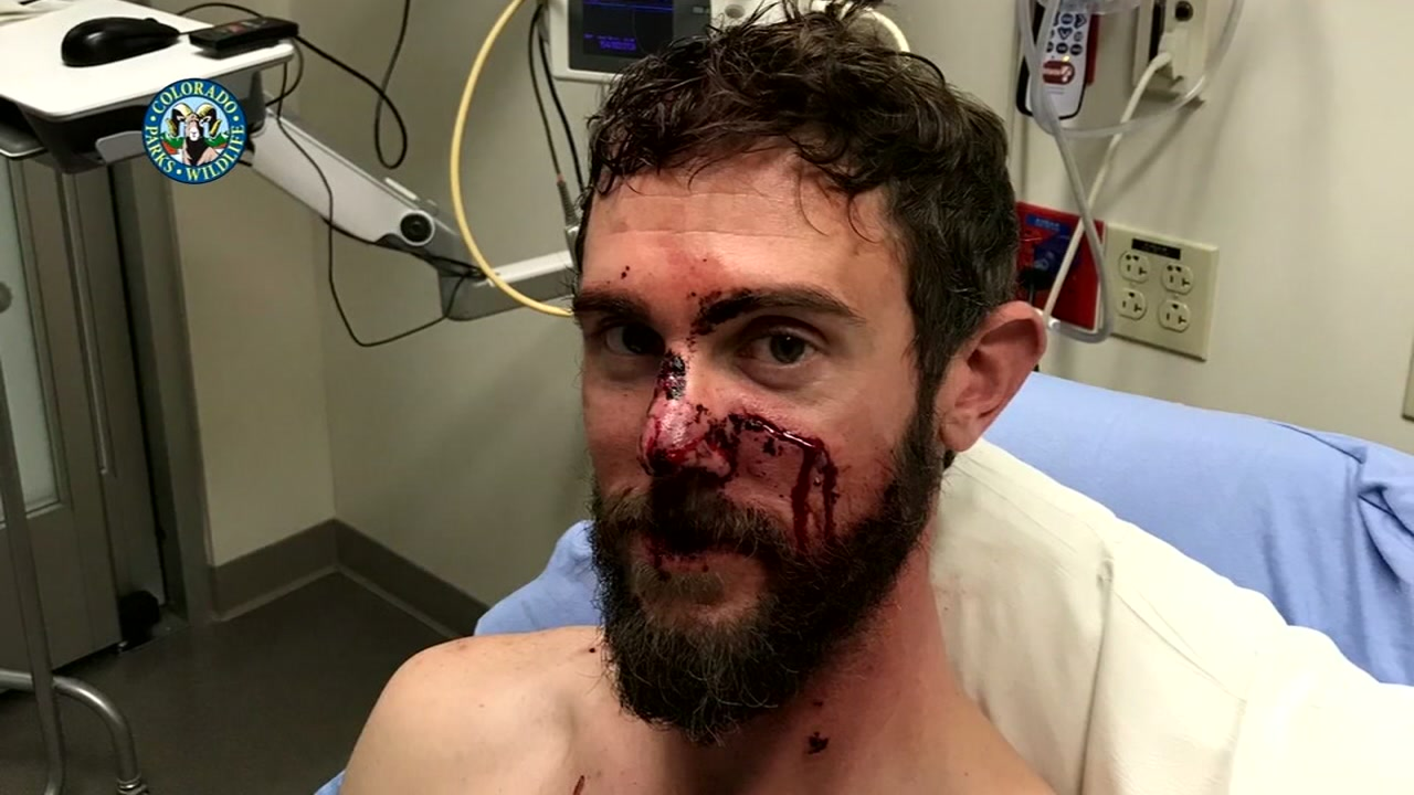 Runner recalls fighting off mountain lion.
